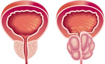 Сколько живут при раке 4 степени предстательной железы