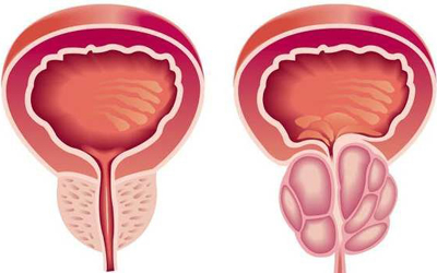 Может выявить рак предстательной железы узи