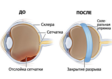 Как правильно подобрать оправу для очков зрения