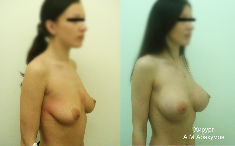 8 неделя беременности грудь болит меньше