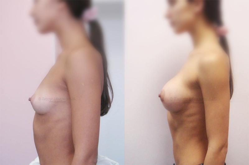 аллергия после операции грыжи