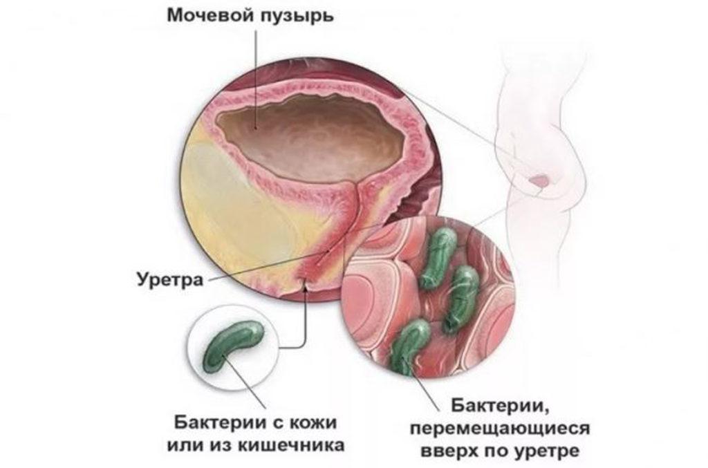 Цистит. Причины и симптомы цистита. Лечение и профилактика цистита