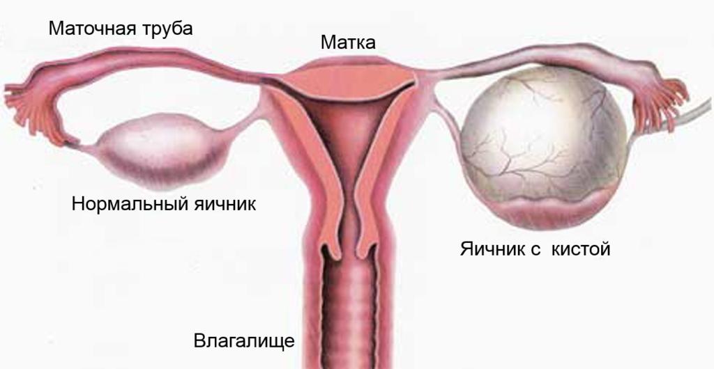 Киста яичников. Симптомы и лечение кисты яичников