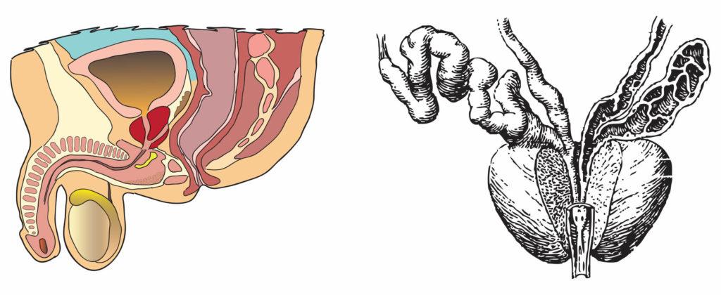 Хронический простатит. Причины, симптомы и лечение хронического простатита