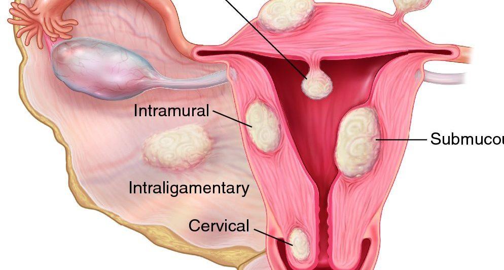 Миома матки. Причины, симптомы и лечение миомы матки
