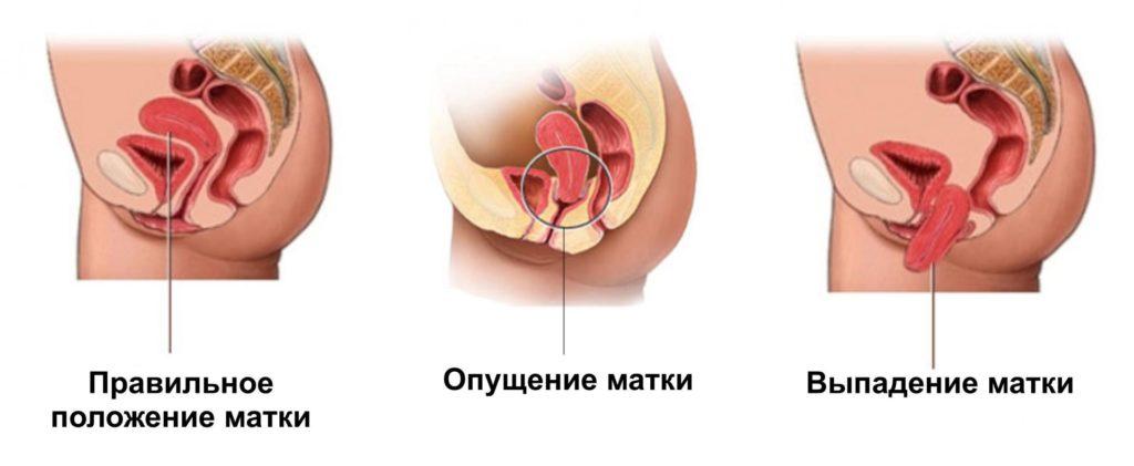 Опущение матки. Симптомы и причины опущения матки. Лечение опущения шейки матки