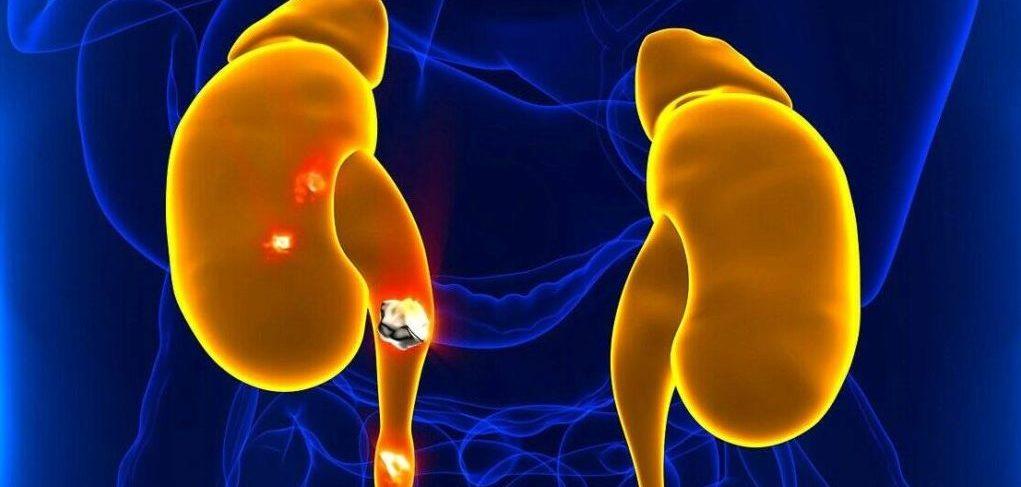 Камни мочеточника. Причины, симптомы и лечение камней мочеточника